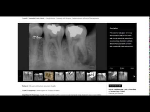Pure Dental Learning PDL