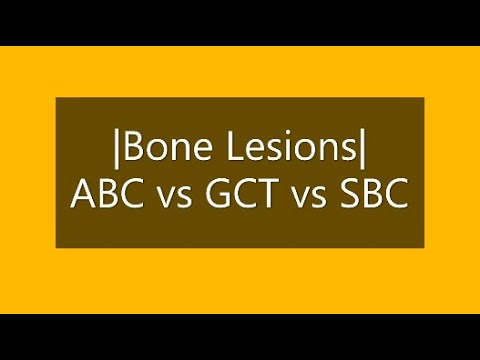 Bone Radiology | ABC Vs GCT Vs SBC