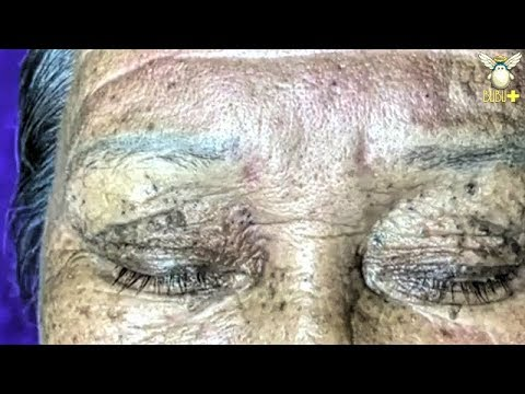 How To Get Rid Of Acne - Old Age Blackheads Removal With Oddly Satisfying  Relaxing Music 2026!