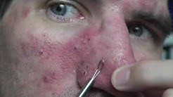 hqdefault - Omnicef For Cystic Acne
