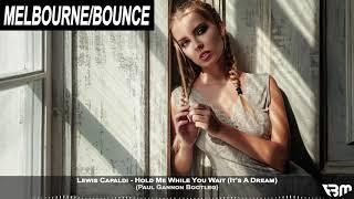 Lewis Capaldi - Hold Me While You Wait (It's A Dream) (Paul Gannon Bootleg) | FBM Video