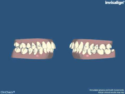 Watch how Invisalign straightens this Sydney Dentist patient's teeth