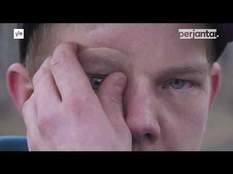 Silmäsyöpä