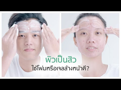 ผิวเป็นสิวควรเลือกใช้โฟมล้างหน้า หรือเจลล้างหน้า?