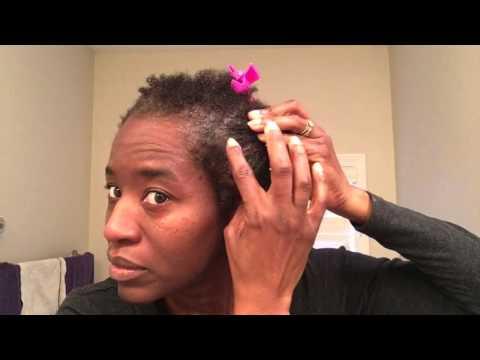 Virgin Hair Fertilizer Day 14