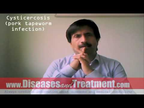 Cysticercosis (Pork Tapeworm Infection)   : Causes, Symptoms, Diagnosis, Treatment, Prevention