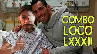 COMBO LOCO LXXXIII