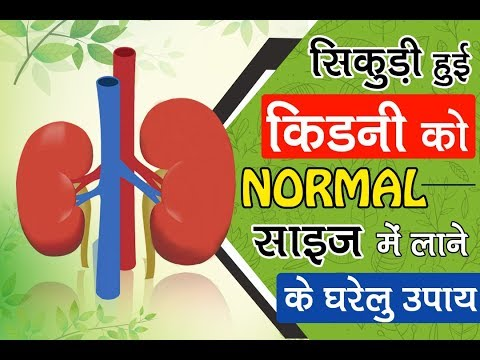 Treatment for Kidney Shrinkage by Ayurveda | Home Remedies for Shrink Kidney