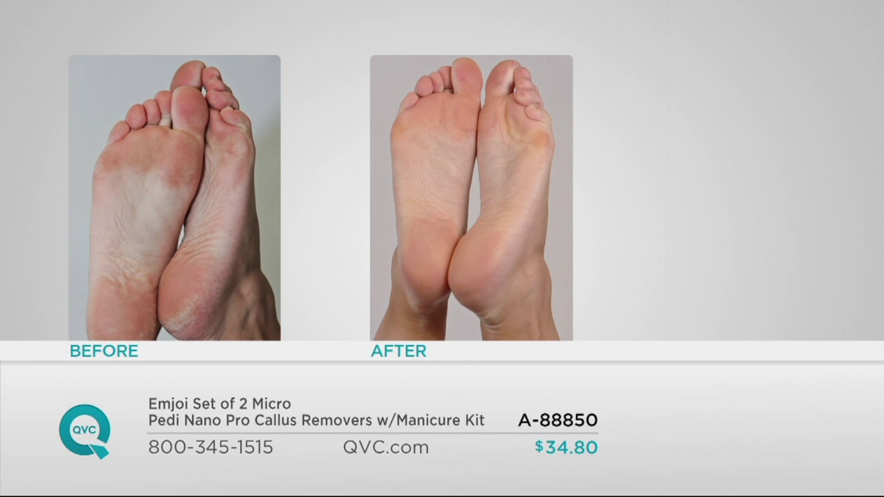 Micro pedi before and after