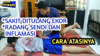 Cara Menghilangkan Nyeri di Bokong (Piriformis Syndrome).