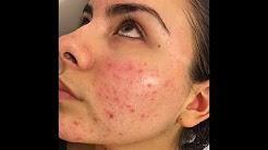 hqdefault - Make Up For Acne Rosacea
