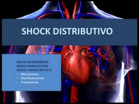 Shock Distributivo Fisiopatolog 237 A Youtube