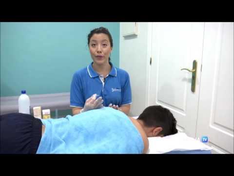 la-punción-seca-como-técnica-de-fisioterapia