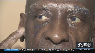 71-Year-Old Attacked In The Bronx