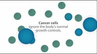 What is cancer: How cancer develops and treatment options