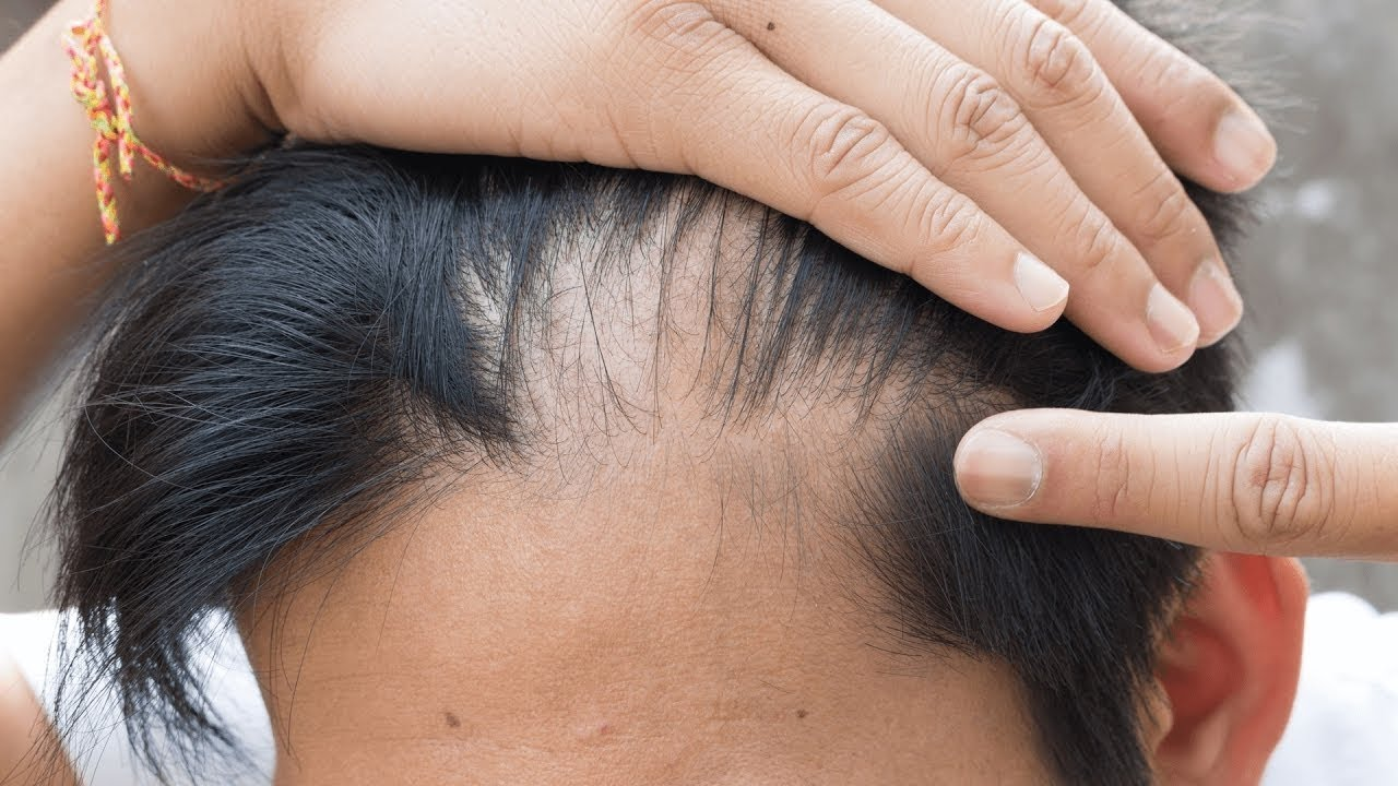 Wie Rizinusöl Die Haargesundheit Positiv Beeinflusst