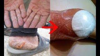 Là con gái đừng để gót chân nứt nẻ, đôi tay khô ráp mà hãy làm điều này để da đẹp mịn chỉ sau 1 đêm