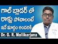 Gallbladder Stone Removal | GallStones Telugu | Gallbladder Symptoms | Dr GR Mallikarjuna  DoctorsTv