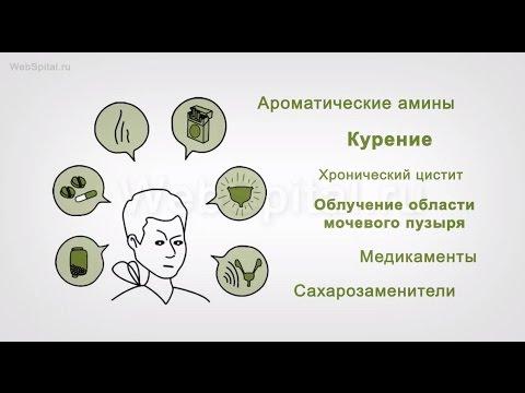 Рак мочевого пузыря.  Причины и симптомы