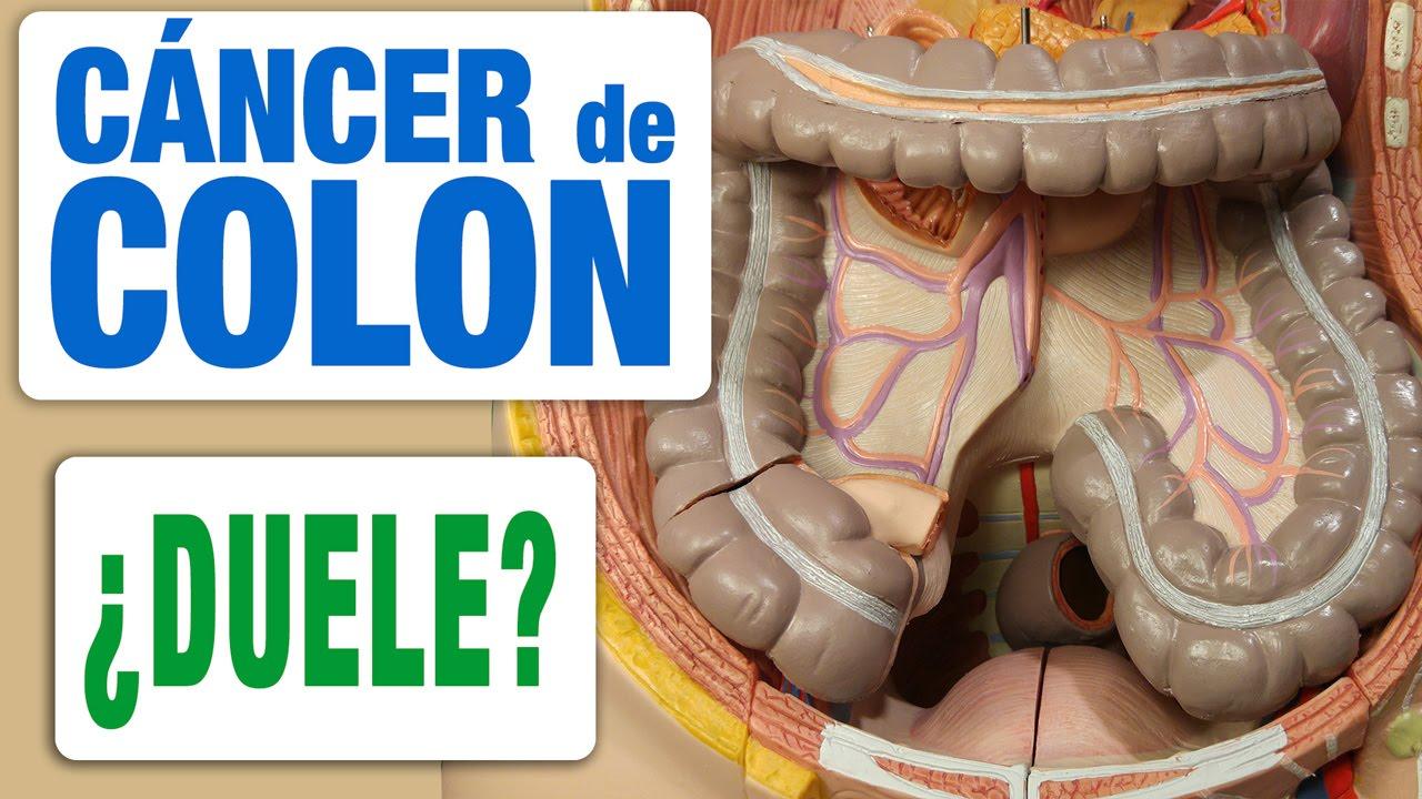 cancer de colon y dolor de espalda