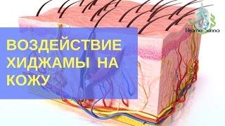 Воздействие хиджамы на кожу thumbnail
