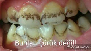 Diş lekeleri nasıl giderilir (renkli tükürük)