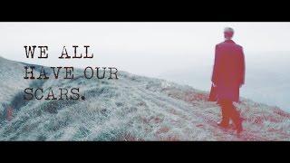 Kieren Walker | We all have our scars. [FVT, TVIPC]