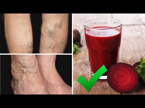Drink This Juice To Prevent and Treat Varicose Veins