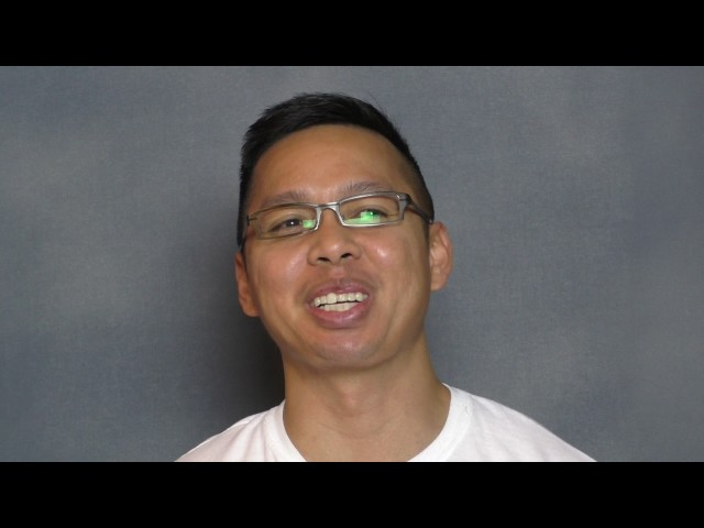 Asian Chin Implant Testimonial with Photos by Dr. Sam Lam in Dallas, Texas