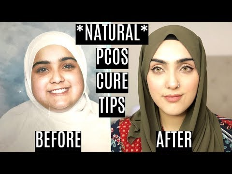 How To Treat PCOS/PCOD Symptoms Naturally + LOSE WEIGHT FAST!   Immy