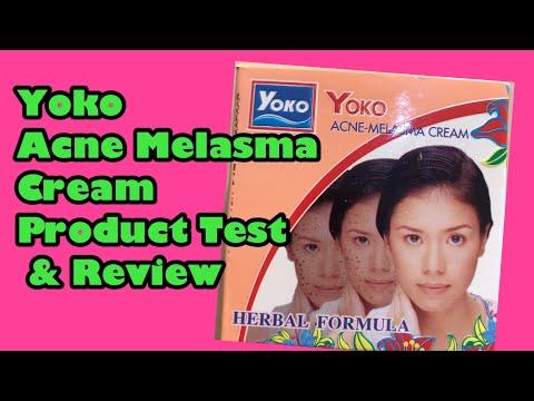 YOKO ACNE MELASMA CREAM PRODUCT TEST AND REVIEW By ANTONETTE AGUAS