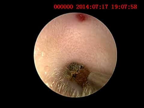 Live Tick In Ear Canal