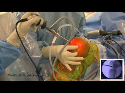 ACL Reconstruction using Hamstring Graft