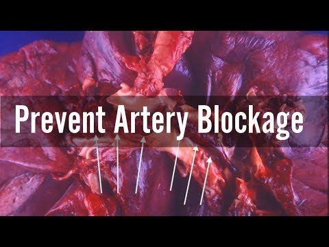 How to Prevent Artery Blockage Naturally | Ways to Prevent Clogged Arteries| Coronary Artery Disease