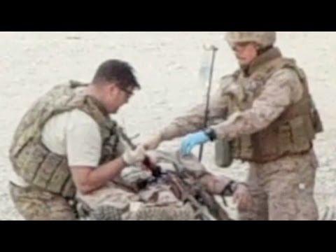 Marine miraculously saved despite live RPG in leg