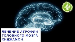 Лечение атрофии головного мозга хиджамой | Обучение Хиджаме