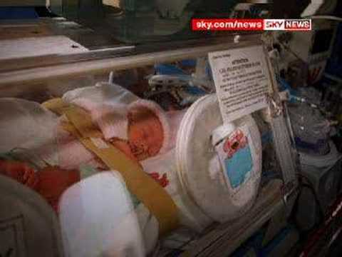 Doctors' Fears Over Home Births