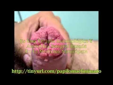 papillomavirus 9