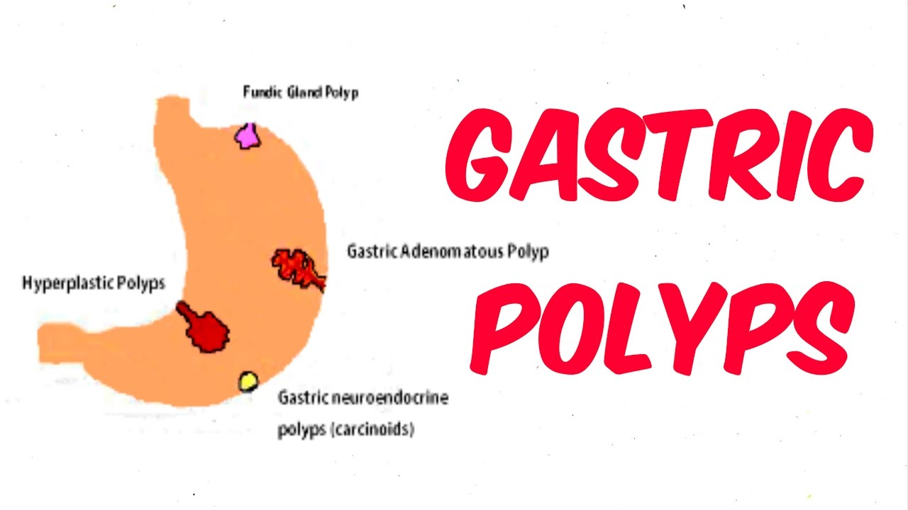 Polyps in the stomach