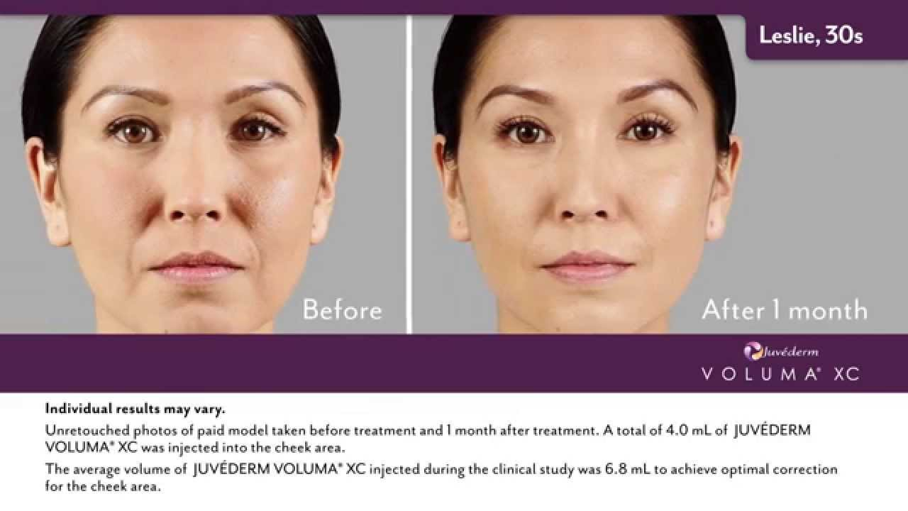 Dermal Fillers Injections Salem Oregon | Neaman MediSpa
