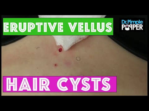 What are these bumps?  Watch how we arrive at the right diagnosis!