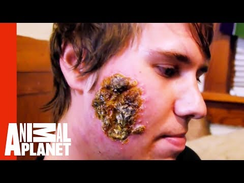 Leishmaniasis Creates Huge Open Wound on a Young Man's Face