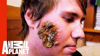 Huge Open Wound on a Young Man's Face | Monsters Inside Me