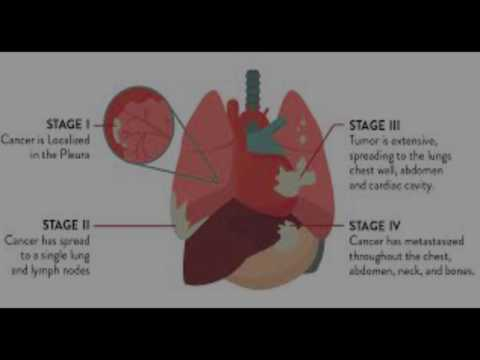 mesothelioma law firms and mesothelioma attorneys in usa,australia and europe 2017