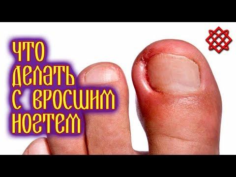 ЧТО ДЕЛАТЬ С ВРОСШИМ НОГТЕМ В ДОМАШНИХ УСЛОВИЯХ. Лечение Вросшего Ногтя