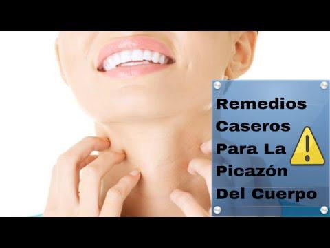 Remedios Caseros Para La Picazon Del Cuerpo: Remedios caseros para curar la ...