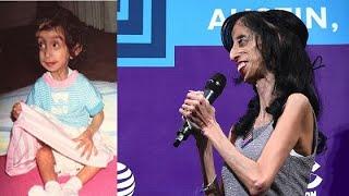 """Sinh ra với diện mạo kỳ lạ, """"cô gái xấu xí nhất thế giới"""" sau 31 năm giờ ra sao?"""