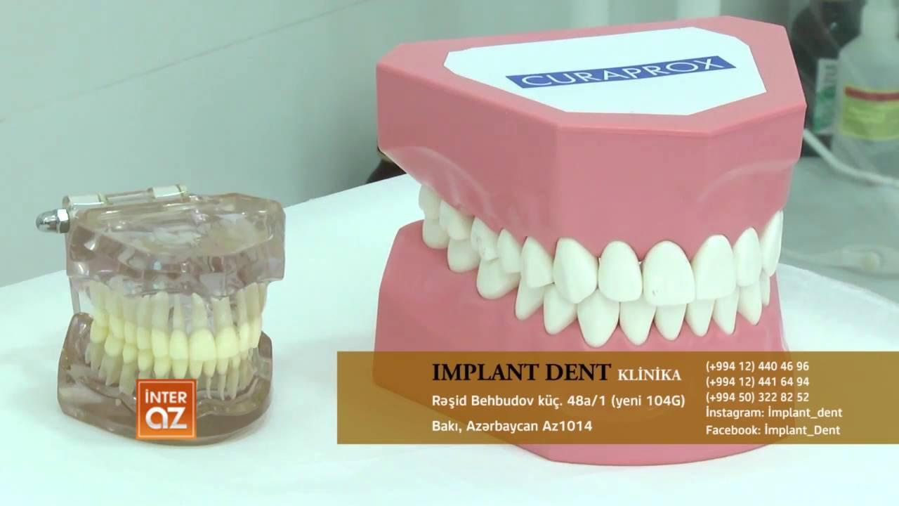 implant de dent
