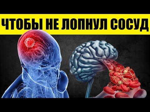 Как болят сосуды в голове
