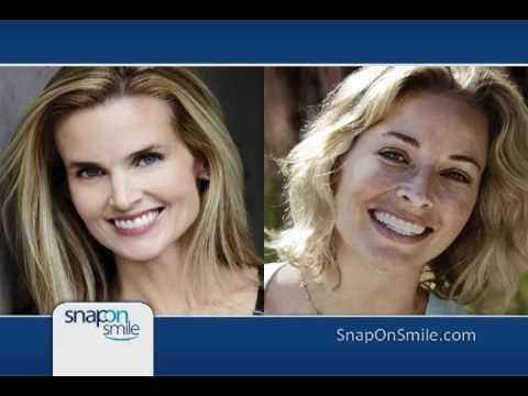 Snap on smile dentist Sydney, Australia   Snap on smile cost